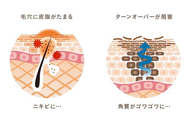 肌が汚れていると、さまざまな美容トラブルの原因となります。